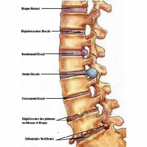 colonne vertebrale decompression neuro vertebrale decompression vertebrale cabinet osteopathie florent schoofs osteopathe paris 7 osteopathie 75007