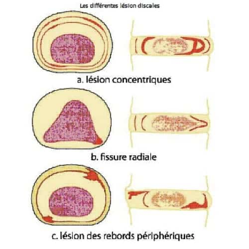 Neuro-Cryo-Stimulation chez l'ostéopathe.